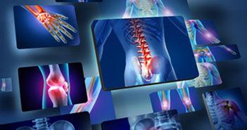 Bor - Jednoduché řešení atritidy a osteoporózy