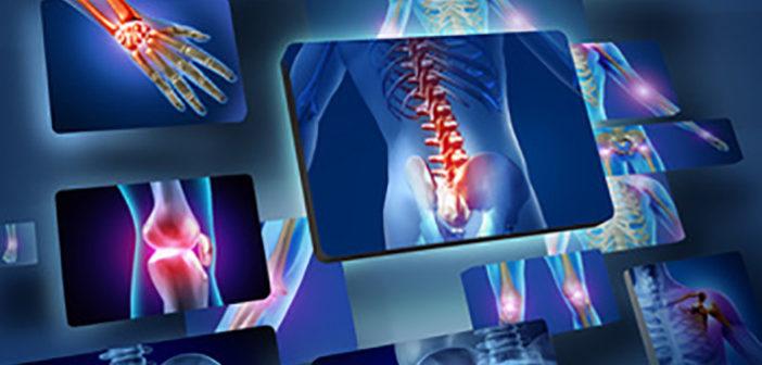 Osteoporóza - jak jednoduché cukry ovlivňují naše kosti a zuby