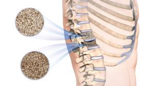 Přebytek železa a osteoporóza v menopauze