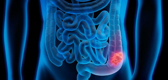 Rakovina tlustého střeva - rizika