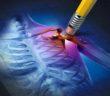 Osteoporóza jsou kurděje kostí, nikoliv nedostatek vápníku